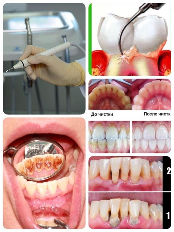 Какая профессиональная чистка зубов лучше: ультразвуком, лазером или air flow? как на долго сохранить эффект после чистки зубов. какие есть противопоказания к разным видам чистки зубов