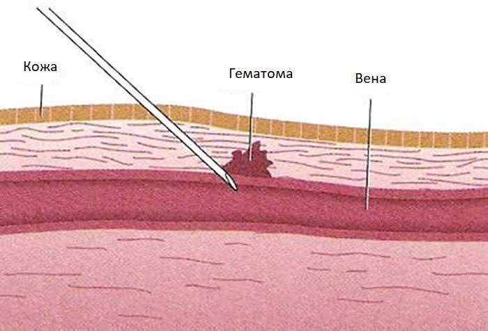 Обезболивающие препараты от ушибов