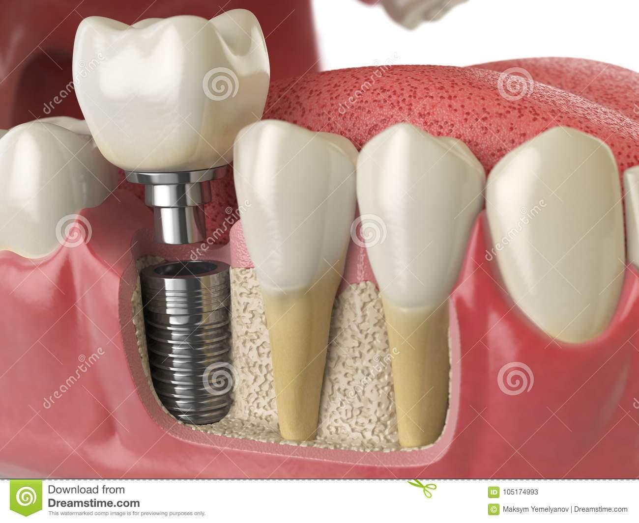 Как правильно пишется и говорится: имплант, имплантант или имплантат