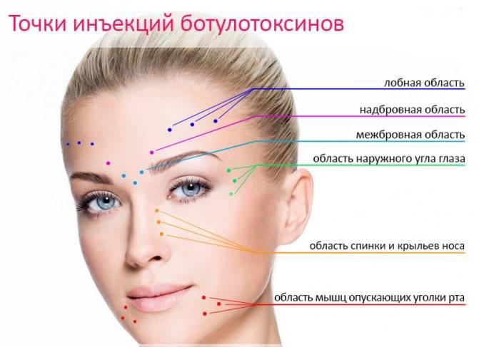 Мезоботокс в косметологии