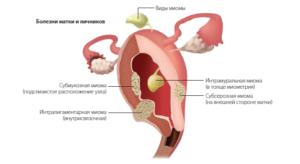 Особенности развития миомы матки в сочетании с эндометриозом