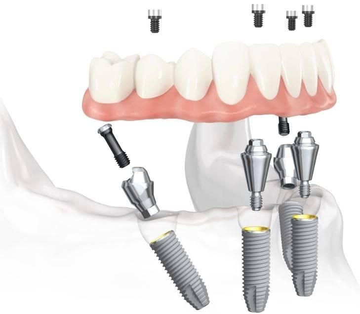 Протезирование зубов без имплантов