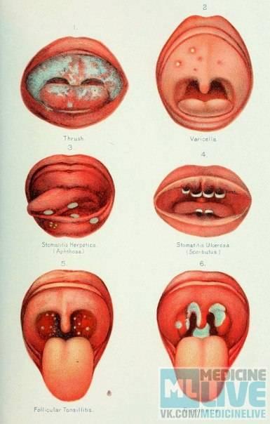 Прыщи во рту у взрослых – следствие неправильной гигиены или болезнь?