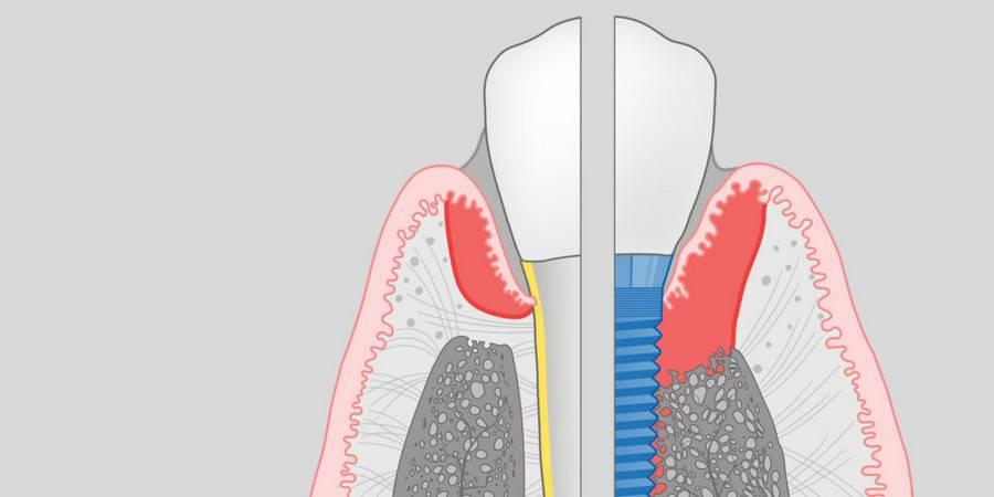 Возможные осложнения после имплантации зубов и рекомендации по их устранению