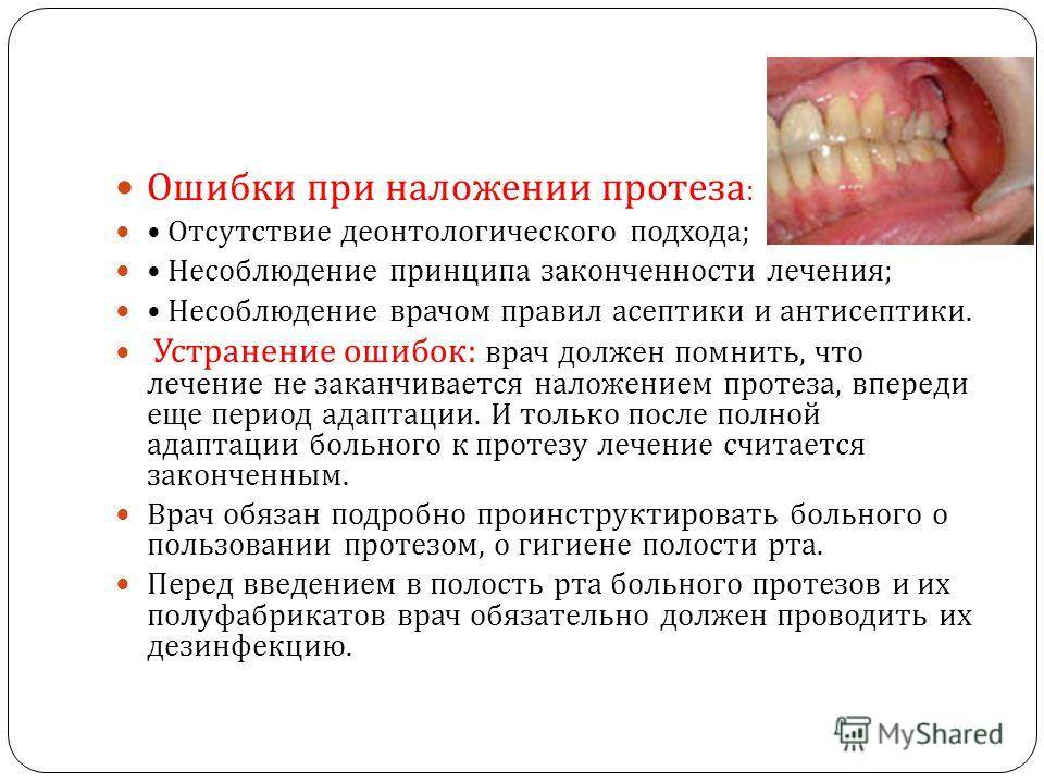 Протезы для зубов: какие лучше выбирать при полном отсутствии зубов?