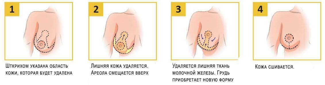 Причины различия размеров ареол и способы их коррекции
