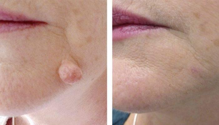 Выведение родимых пятен. что делать с родимым пятном на лице? электрокоагуляция – удаление током