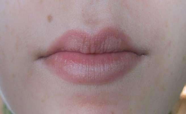 Причины белых пигментных пятен на губе