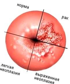 Эрозия шейки матки: консультация акушера-гинеколога