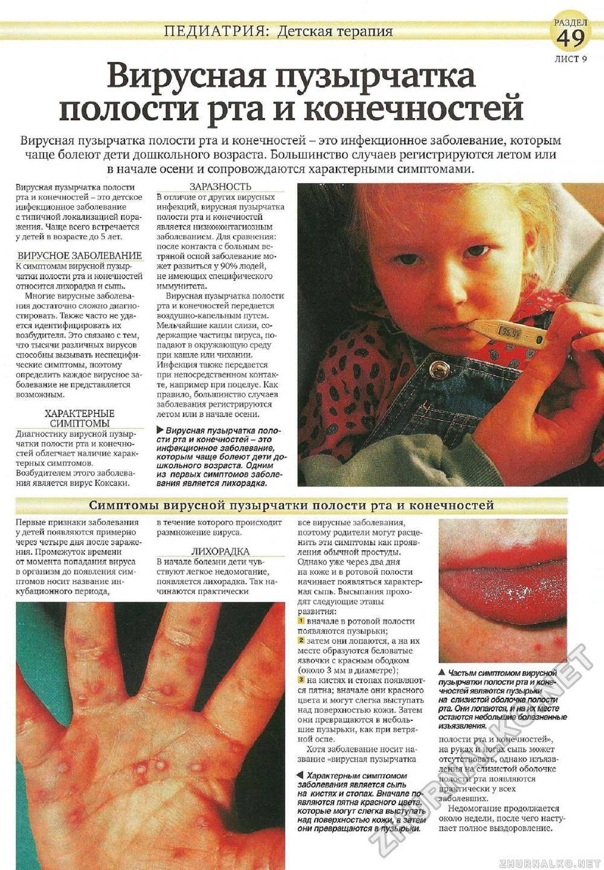 Энтеровирусный везикулярный стоматит его лечение