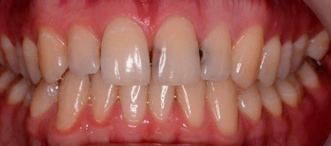 Зубочистки опасны для здоровья ротовой полости: чем заменить привычные приспособления