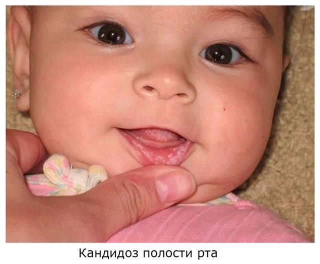 Кандидоз (молочница) у детей: симптомы болезни, лечение и профилактика