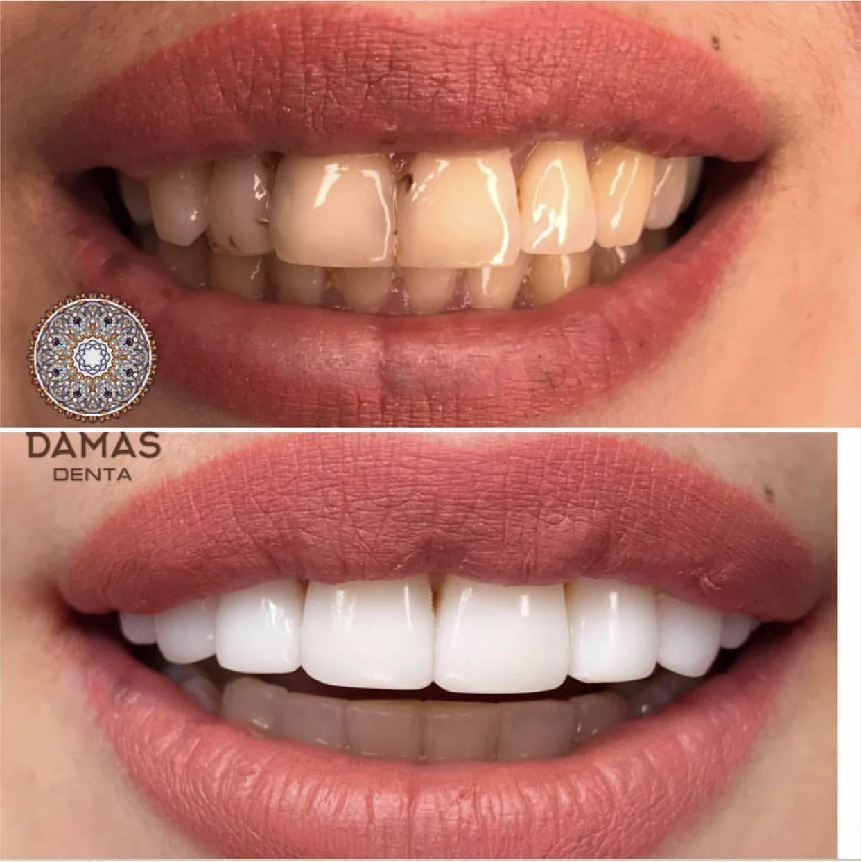Композитные виниры на зубы: цена, отзывы, фото