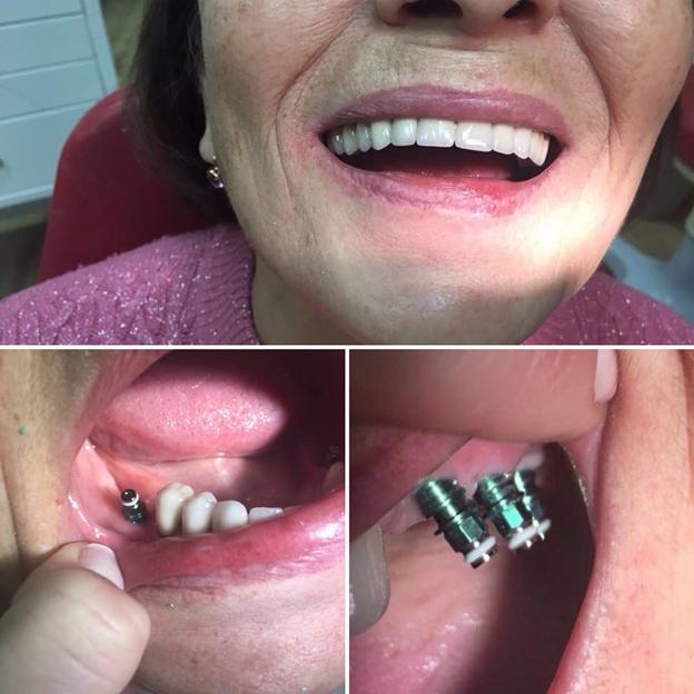 Имплантация зубов на нижней челюсти — особенности процедуры