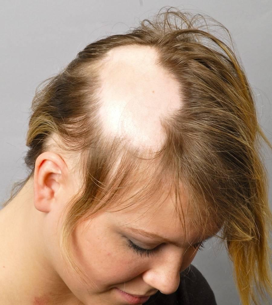 Выпадение волос при себорее лечение