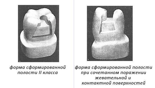 Оперативная техника препарирования кариозных полостей зубов