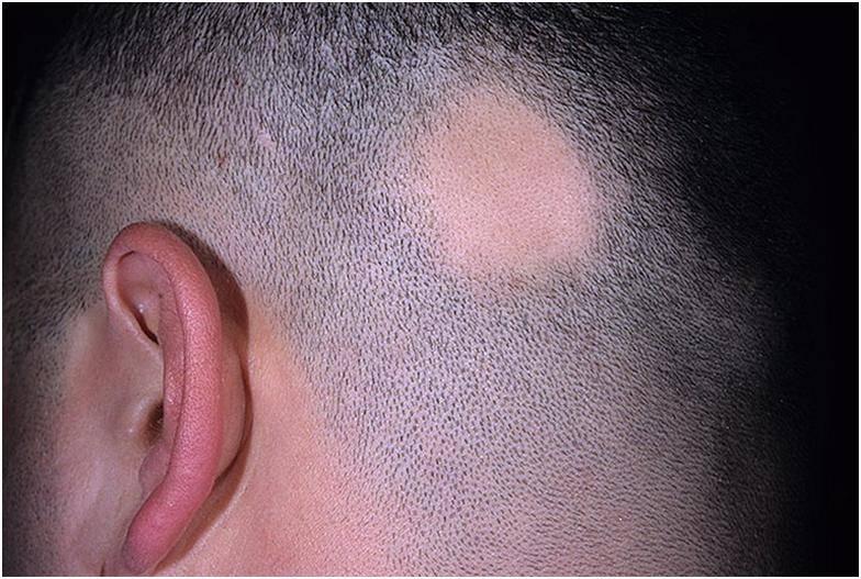Гнездное облысение – как лечить алопецию и чем вылечить плешивость