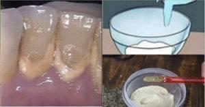 Полоскание рта содово-солевым раствором при зубной боли: пропорции, как приготовить