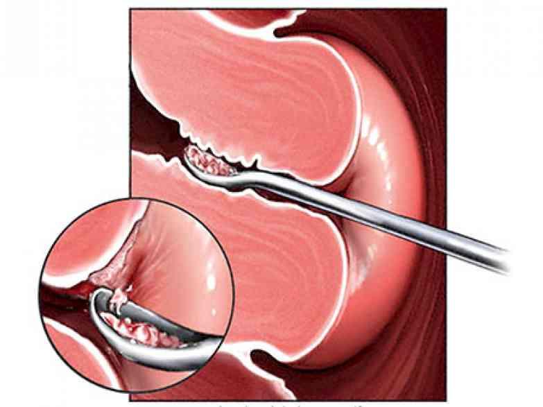 Причины появления и методы лечения полипа после родов