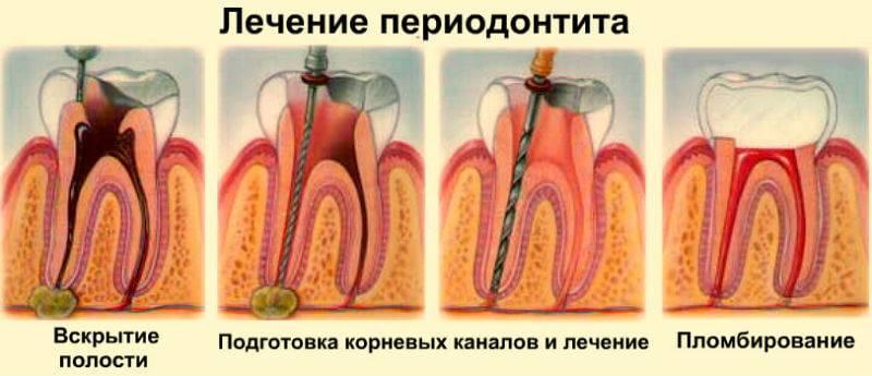 8.6.2. лечение хронического верхушечного периодонтита