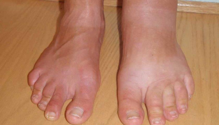 Пастозность ног