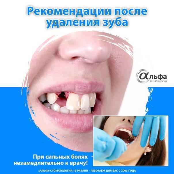 Сколько держать вату после удаления зуба