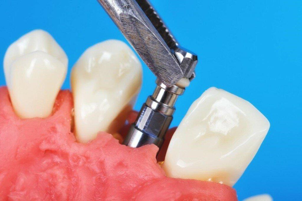Как импланты зубов приживаются, сколько времени? причины отторжения