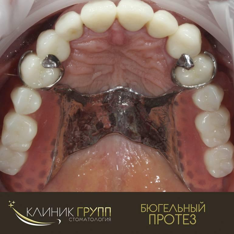 Какие зубы лучше вставлять: разнообразие видов протезов