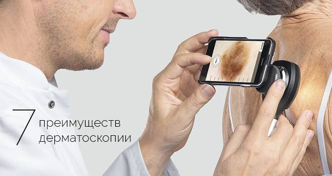 Дерматоскопия. что это за исследование и когда оно проводится? методики. где сделать процедуру?