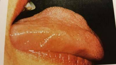 Макроглоссия. макроглоссия (увеличение языка) – причины, симптомы и лечение