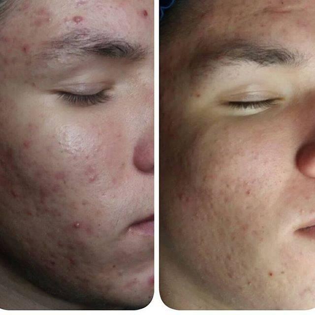 Лазерная чистка лица — какой от неё эффект?