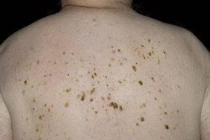 Себорейный кератоз: разновидности, симптомы, методы лечения
