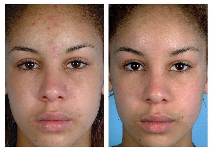 Алмазный пилинг: эффективная процедура очистки кожи или маркетинговая уловка