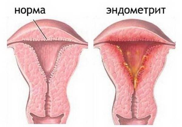 Причины возникновения, симптомы и лечение эндометрита после естественных родов и кесарева сечения