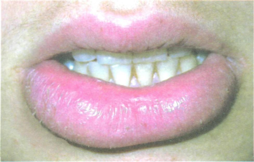 Как лечить хейлит на губах?