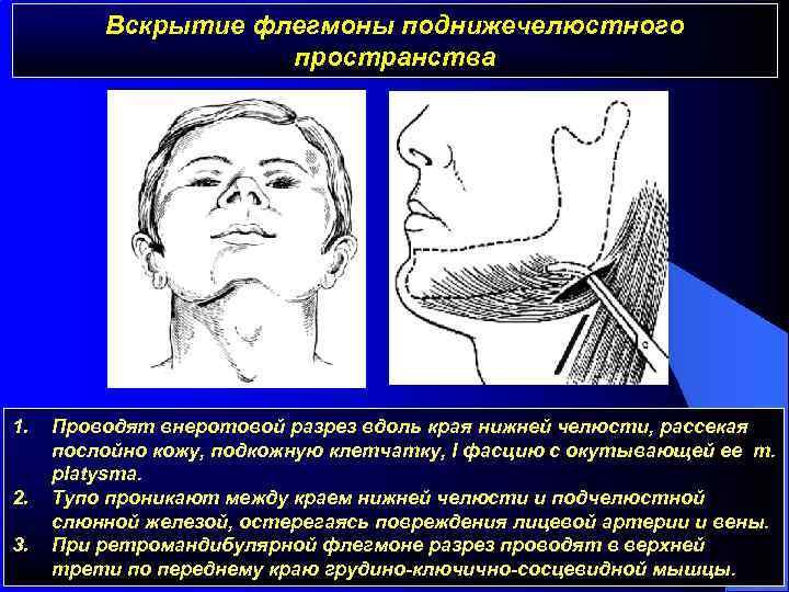 Что за заболевание флегмона челюстно-лицевой области и как его лечить?