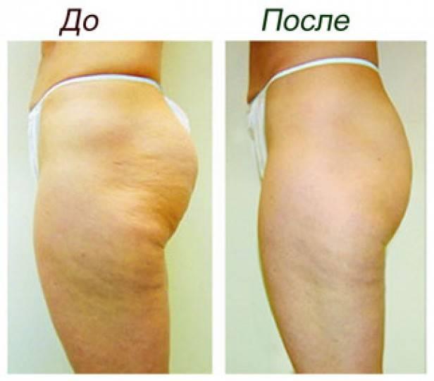 Устранение дефектов кожи с помощью ультразвуковой кавитации