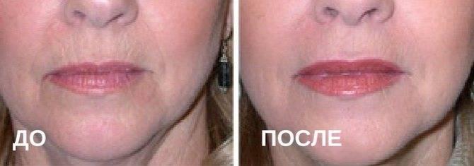 Все о процедуре ботокса для губ: подготовка, противопоказания, стоимость процедуры, фото до и после