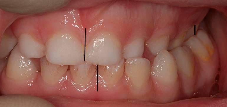Аномалия зубов