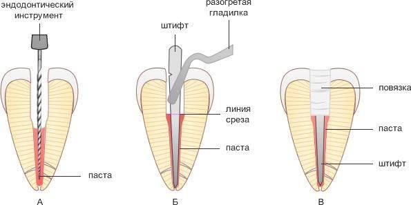 Зубная боль после установки штифта