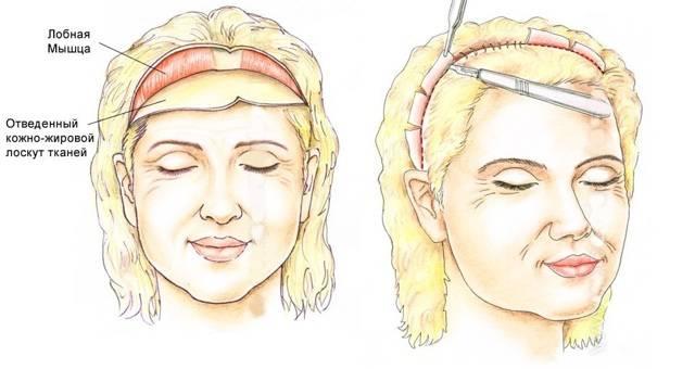 Лифтинг бровей: показания и противопоказания. методы проведения процедуры