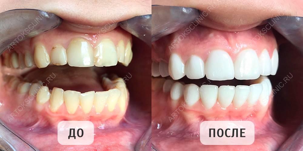 Что лучше — люминиры или голливудские виниры на передние зубы: отличия с фото, плюсы и минусы