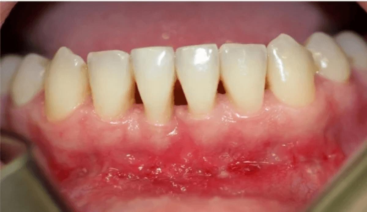 Причины, лечение и фото белых язвочек у ребенка во рту