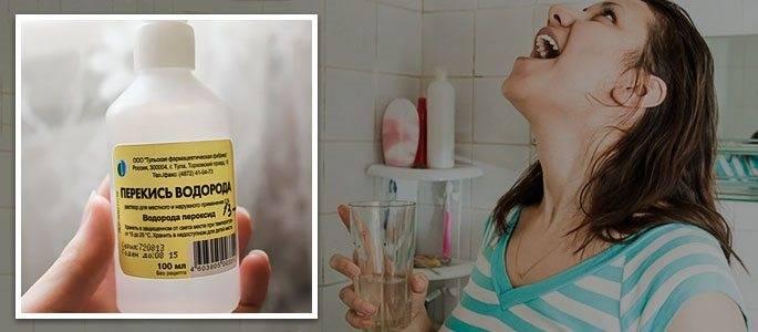 Правила полоскания рта перекисью водорода