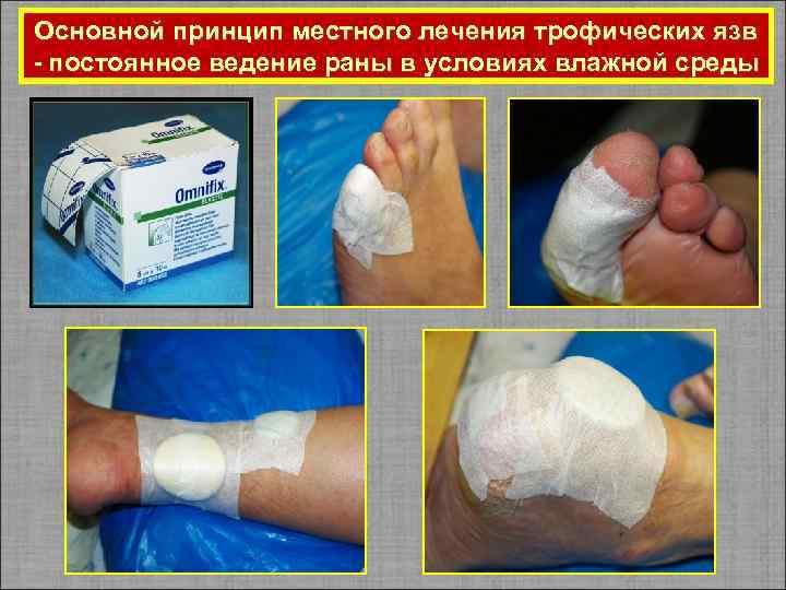 Лечение трофических язв на ногах антибиотиками