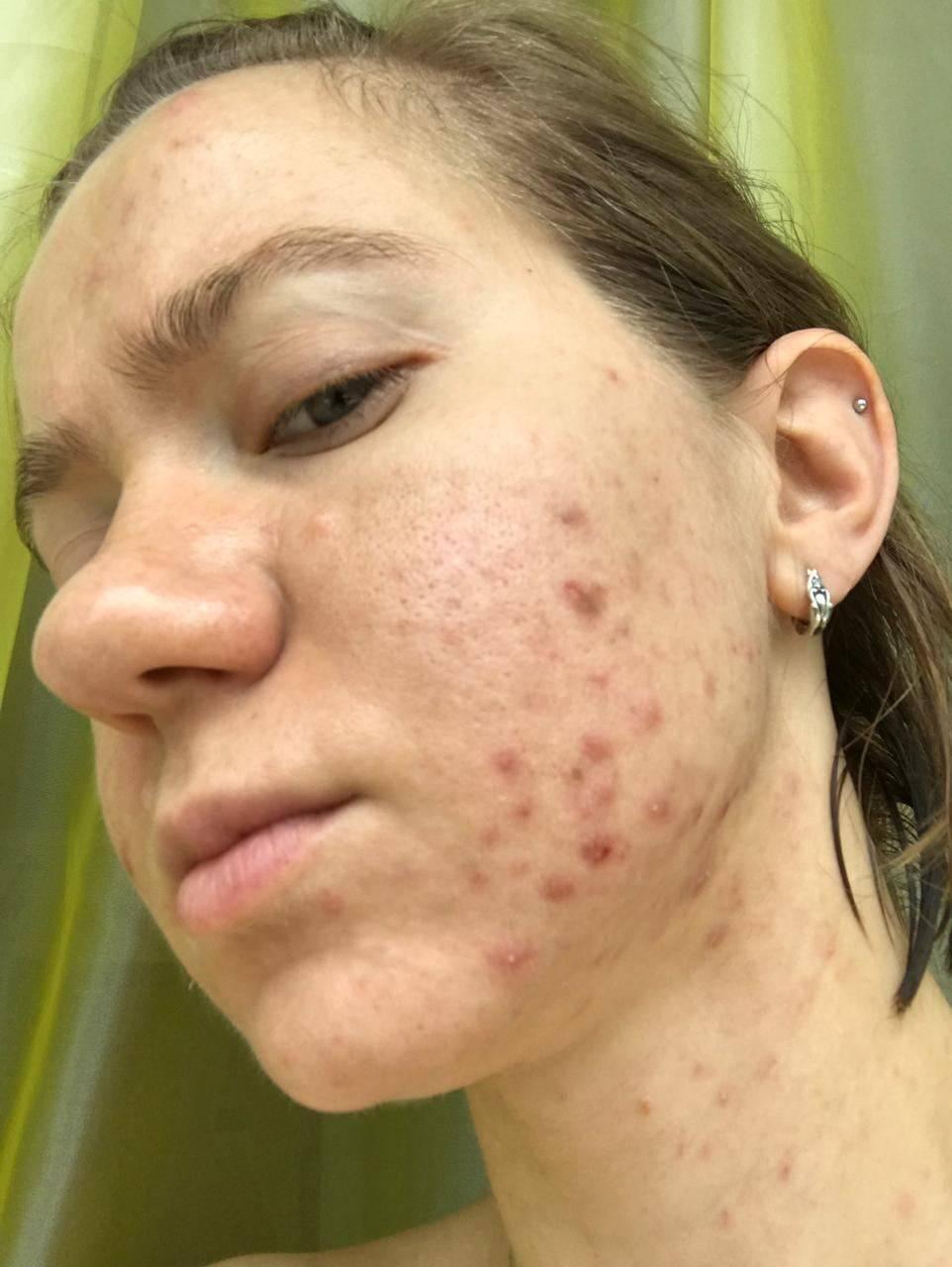 Эффективные методы лечения демодекоза на коже лица в домашних условиях