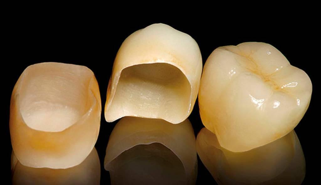 Слепки зубов для брекетов – зачем и как делают