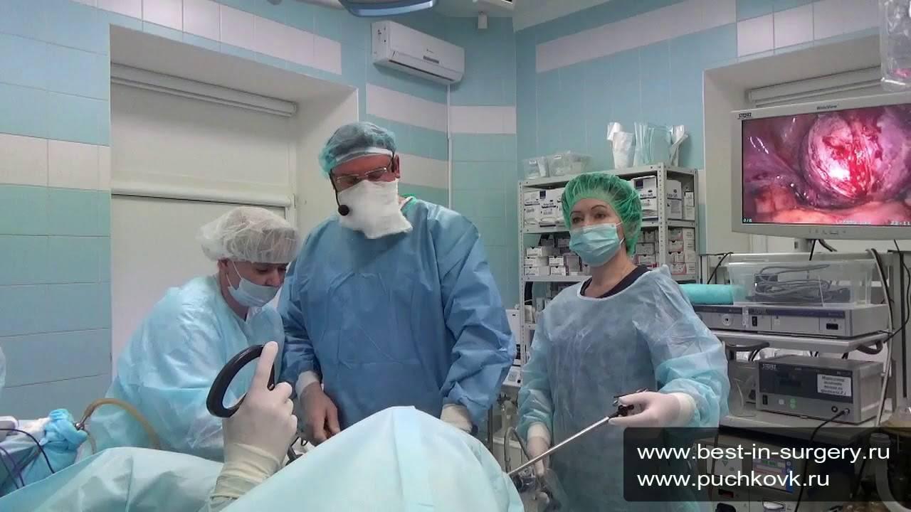 Размеры миомы матки для операции и способы удаления