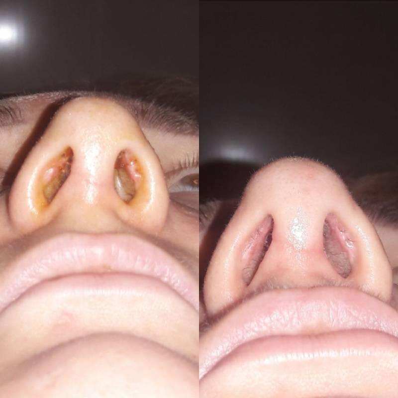 Восстановление после исправления носовой перегородки