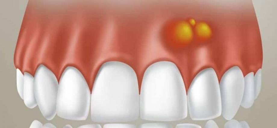 Абсцесс десны: симптомы и лечение в домашних условиях и в стоматологии